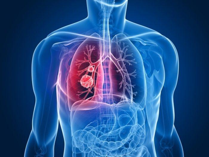 Ung thư phổi sống được bao nhiêu năm? Điều trị ung thư phổi