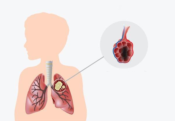Bệnh ung thư phổi giai đoạn 3 có diễn biến nguy hiểm khó lường.