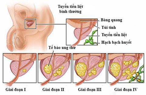 Ung thư tiền liệt tuyến giai đoạn cuối có thể chữa khỏi được không?