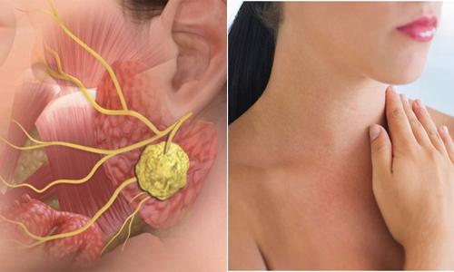 Tỉ lệ mắc ung thư vòm họng ở nam giới cao hơn nữ giới