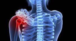 Hình ảnh mô phỏng căn bệnh ung thư xương