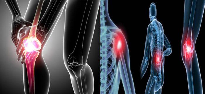 Ung thư xương: Nguyên nhân, triệu chứng và chữa khỏi ung thư xương
