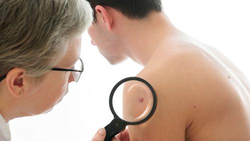 Ung thư hắc tố nốt ruồi đầu chi là gì? Dấu hiệu, nguyên nhân bệnh