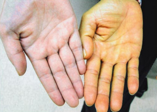 Ung thư gan giai đoạn cuối biểu hiện là vàng da