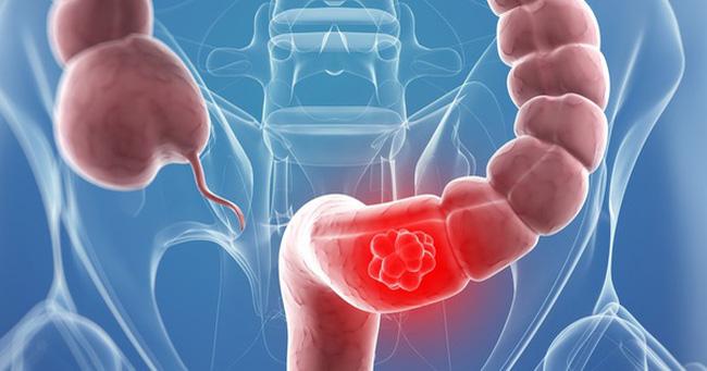 Ung thư trực tràng di căn hạch và những biểu hiện không ngờ