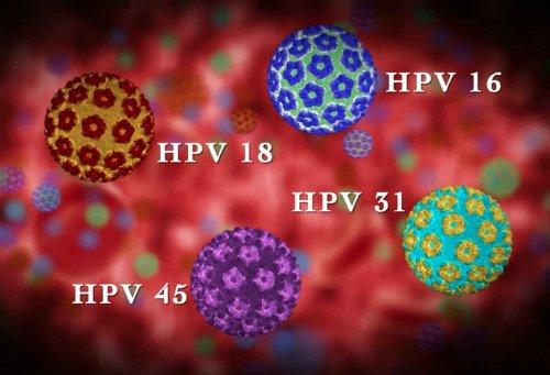 Virus HPV 16, 18 là nguyên nhân dẫn đến ung thư cổ tử cung