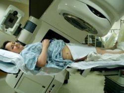 Xạ trị ung thư cổ tử cung có đau không là câu hỏi của khá nhiều phụ nữ.