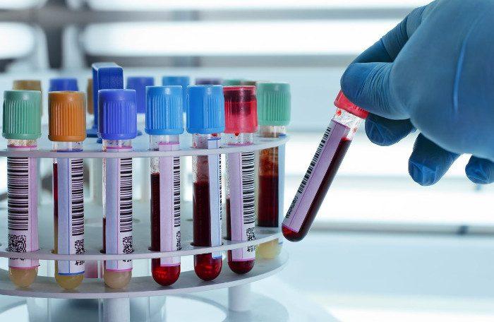 Xét nghiệm máu có thể phát hiện ung thư máu sớm