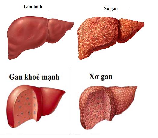 Xơ gan là bệnh gì?