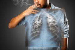 Ung thư phổi có di truyền không là câu hỏi của nhiều bệnh nhân