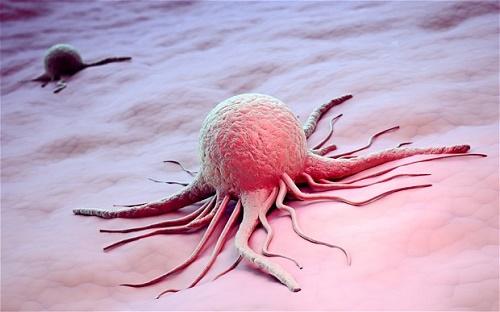 Điều trị ung thư tại bệnh viện ung bướu cho kết quả tích cực