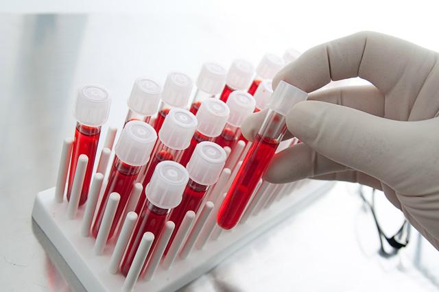 Xét nghiệm phát hiện ung thư sớm giúp điều trị bệnh hiệu quả