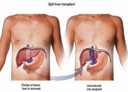 Ghép gan là cách loại bỏ ung thư gan nhanh chóng nhất hiện nay