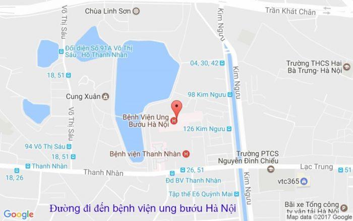 Đường đi đến bệnh viện ung bướu Hà Nội