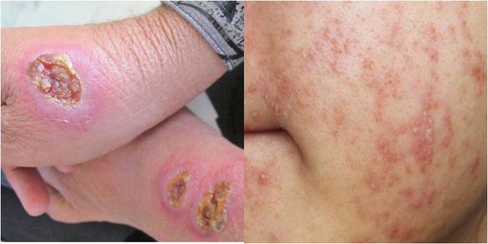 Hạ khô thảo giúp điều trị những bệnh về da