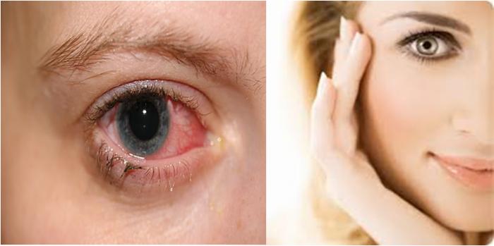 Hạ khô thảo hỗ trợ điều trị bệnh đau mắt đỏ và làm sáng mắt