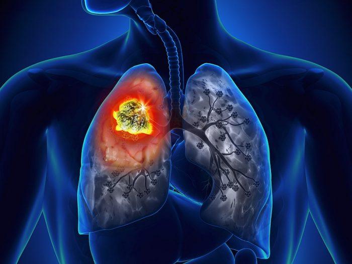 Ung thư phổi là căn bệnh nguy hiểm có số người mắc phải rất lớn