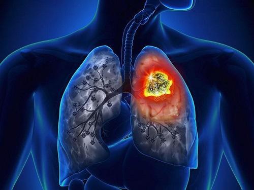 Bệnh ung thư phổi cực kỳ nguy hiểm tính mạng con người