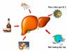 Bệnh học ung thư gan nguyên phát là gì? Cách phát hiện và điều trị