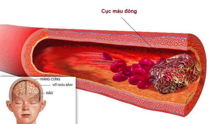 Tam thất bắc có tác dụng làm tan các vết máu bầm trong cơ thể