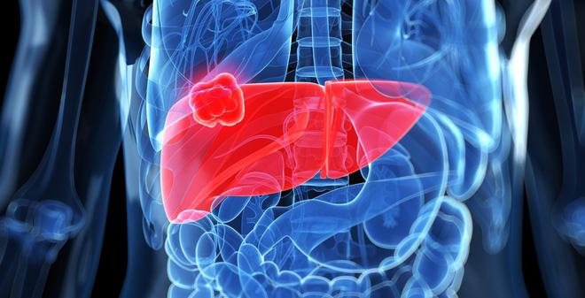 Ung thư gan gây ra nhiều biến chứng nặng nề cho người bệnh