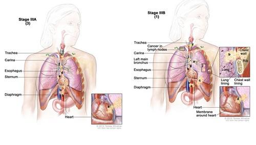 Ung thư phổi giai đoạn 3 sống bao lâu?