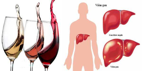 Uống nhiều rượu sẽ gây bệnh về gan