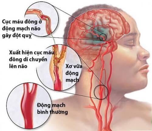 Tai biến mạch máu não – Nỗi lo cho người cao tuổi